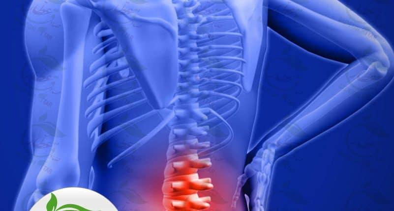 داروی درمان دیسک کمر و مهره های گردن