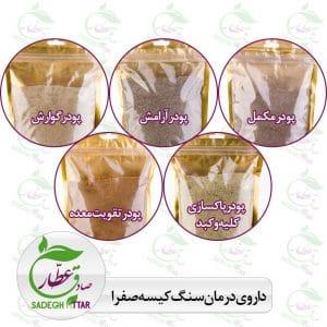 داروی درمان سنگ کیسه صفرا بدون جراحی