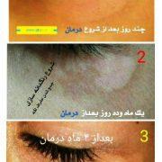 تصاویر درمان برص،پیسی،لک و پیس،Vitiligo
